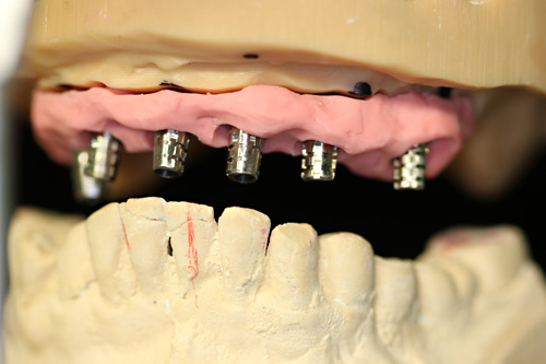 Heidelberger Sofortversorgung Bollak dental